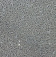 Endothelia cells derived from Hey1/2 deficient mouse embryonic stem cells after 14 days of differentiation